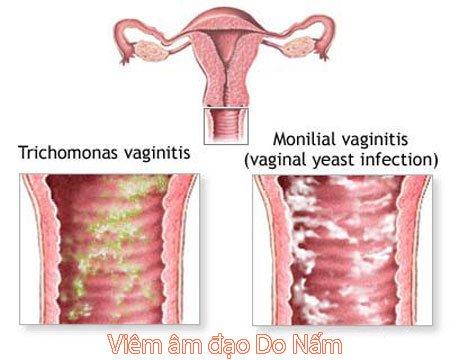 Viêm nấm âm đạo, có dẫn đến vô sinh?