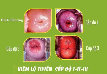 Biểu hiện cách phòng ngừa viêm lộ tuyến cổ tử cung
