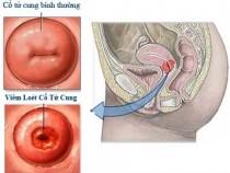 Cách điều trị viêm cổ tử cung tốt nhất