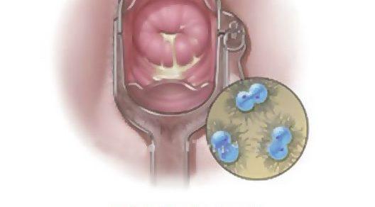 Dấu hiệu triệu chứng bệnh lậu ở nữ giới